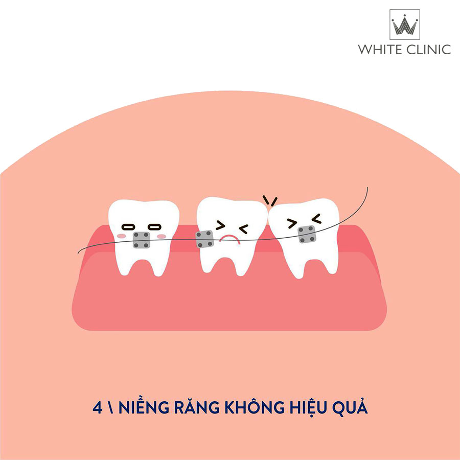 nieng-rang-khong-hieu-qua
