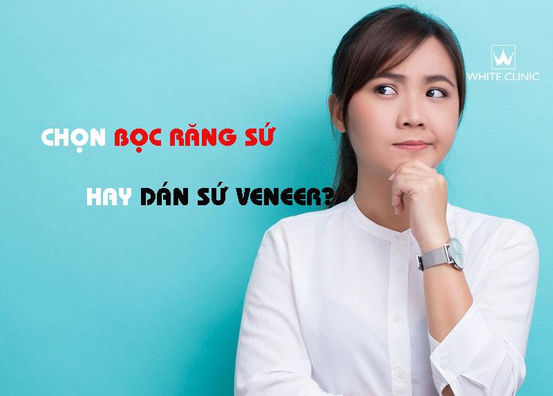 boc-rang-su-hay-dan-su-veneer