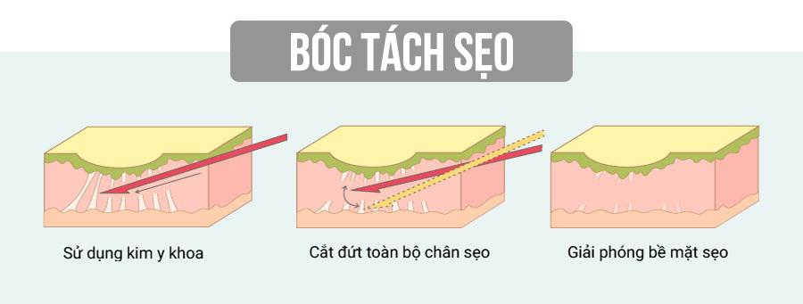 boc-tach-day-seo