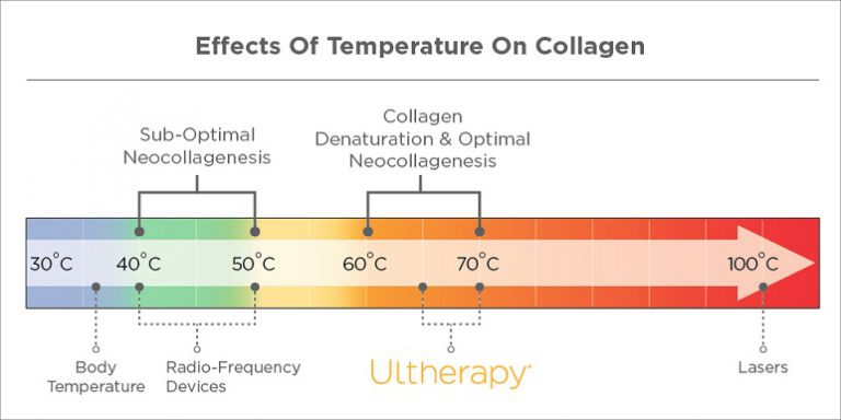 cong-nghe-nang-co-Ultherapy