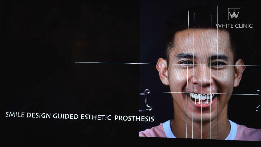 smile-design-ho-vinh-khoa