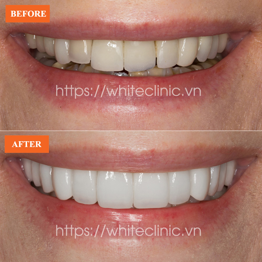 dan-su-ultra-veneer-white-clinic-2