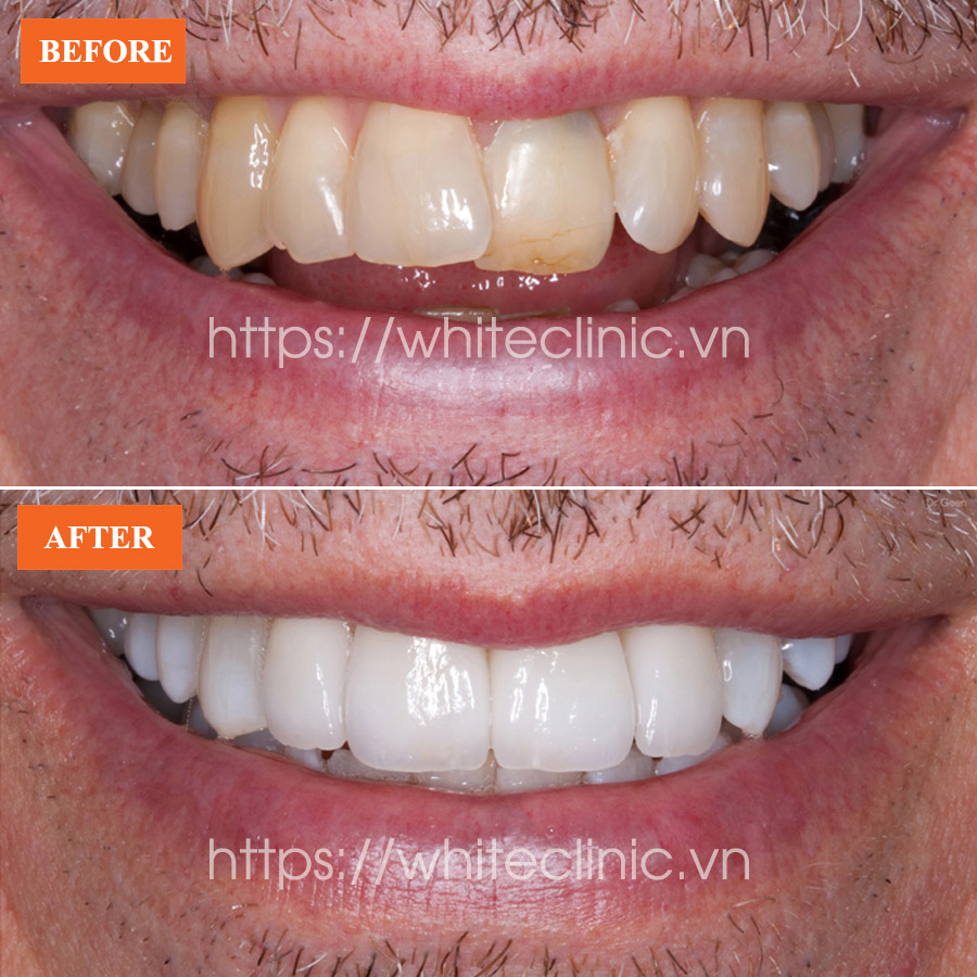dan-su-ultra-veneer-white-clinic-3