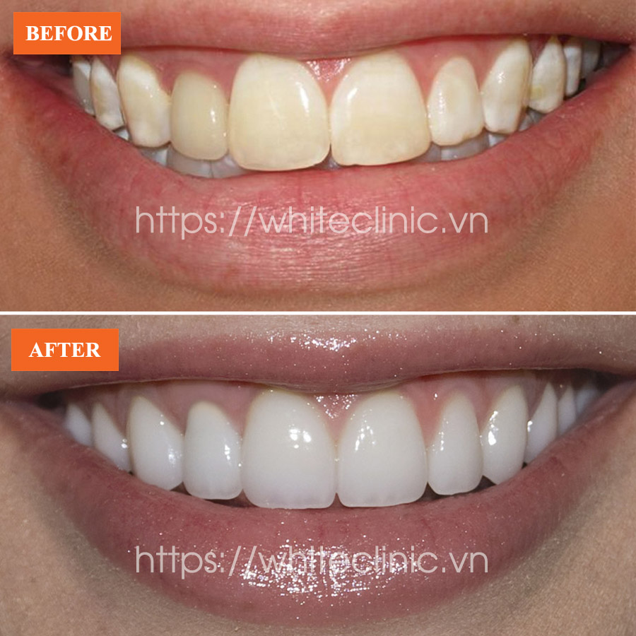 dan-su-ultra-veneer-white-clinic-4