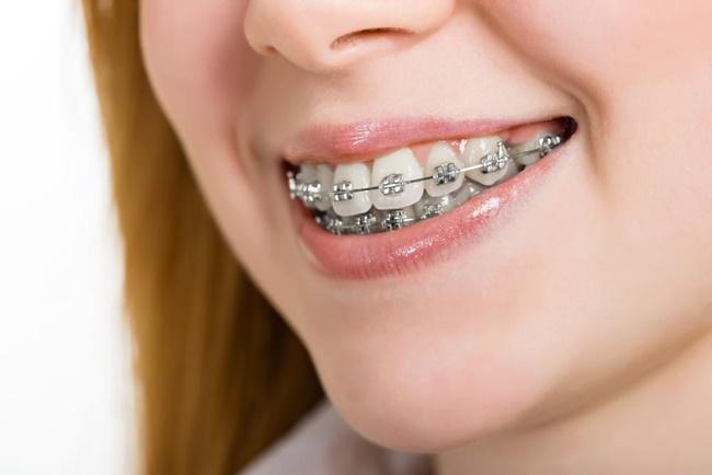 Ưu và nhược điểm của các loại mắc cài niềng răng là gì?