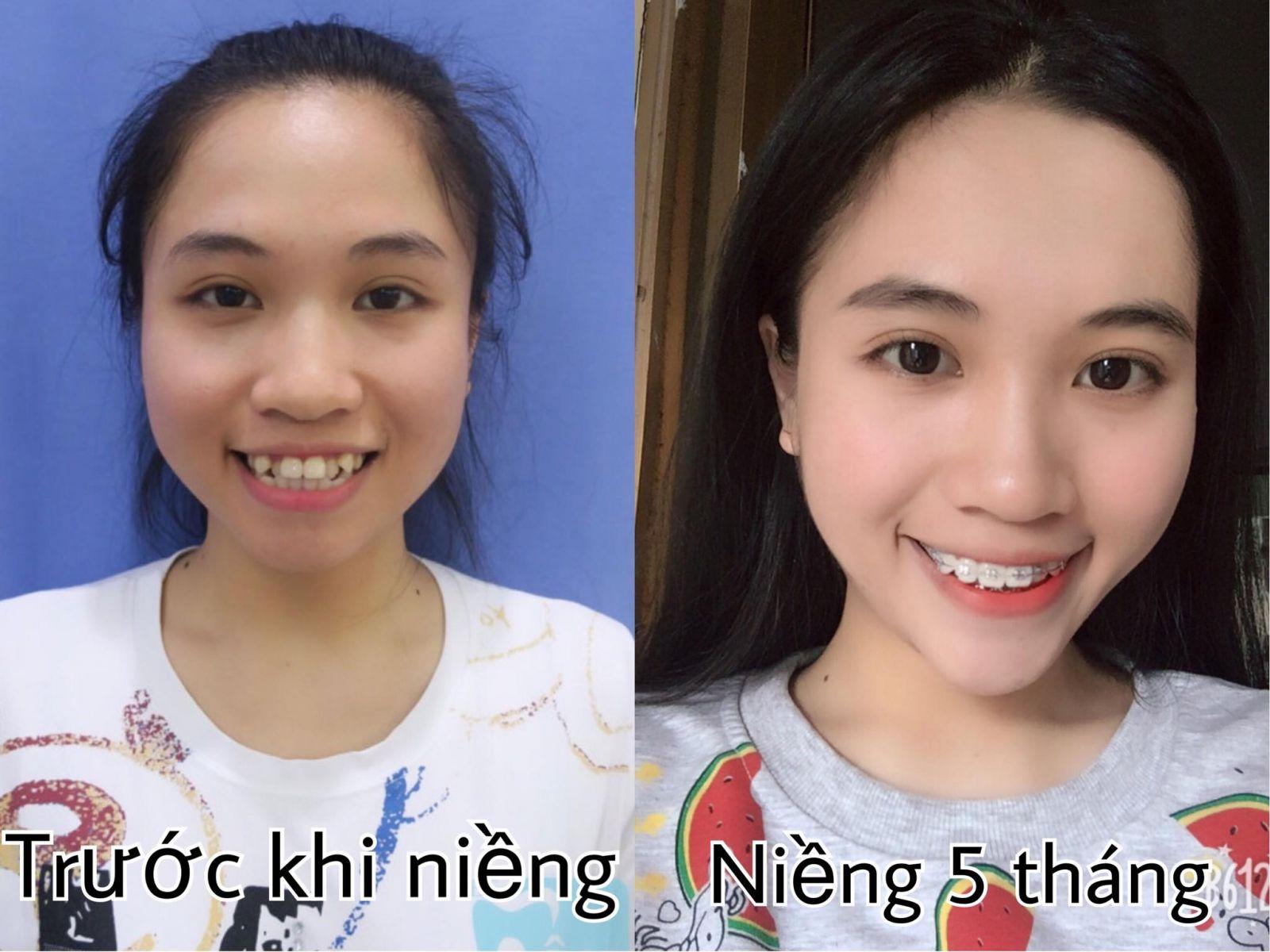 nieng-rang-tra-gop