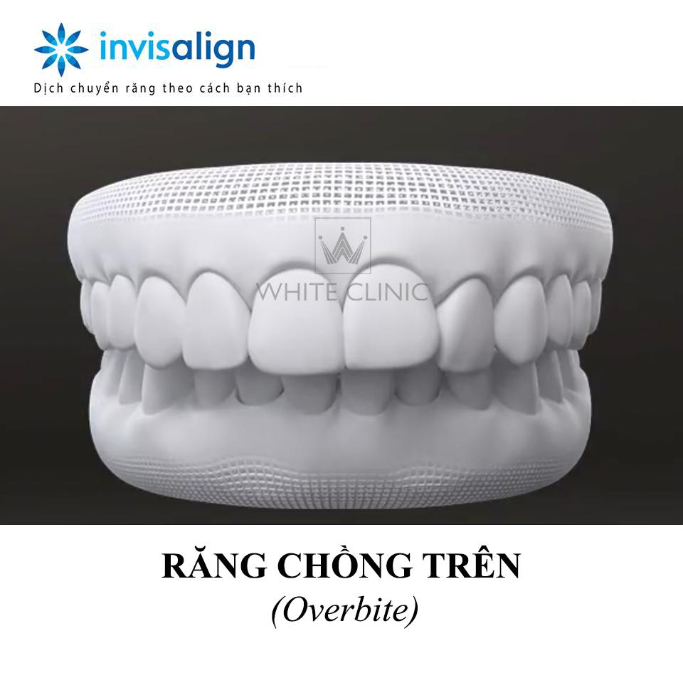 rang-chong-tren-white-clinic